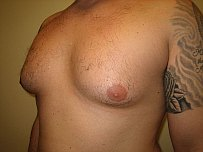 Male Breast Liposuction