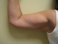after Arm Liposuction