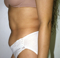 abdomen lipo - before