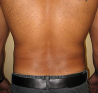 before back lipo