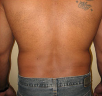 back lipo - before
