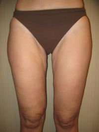 after Thigh Liposuction