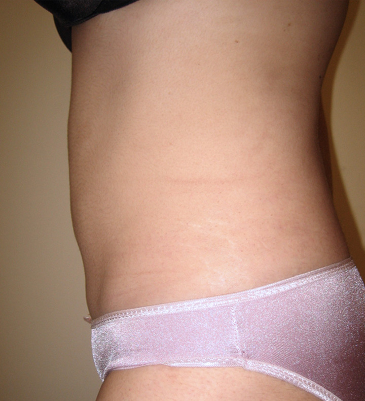 lipo patient - after pictur