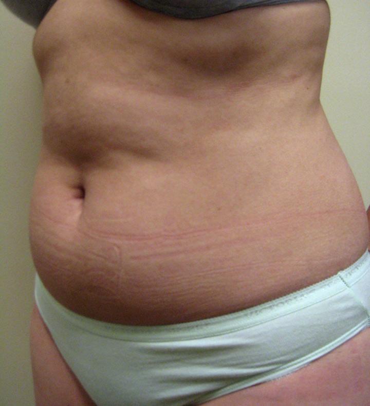 New York Liposuction NYC - SmartLipo TriPlex - Dr  Arnold Breitbart