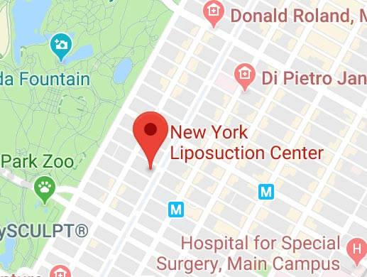 New York Liposuction Center Map