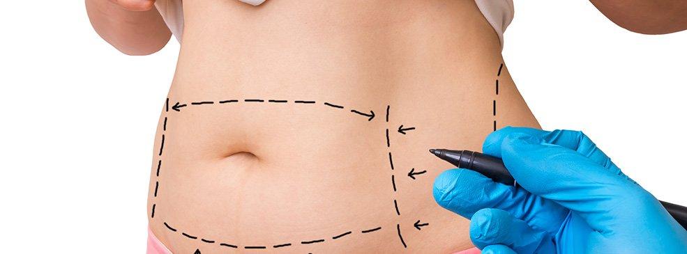 Abdomen Liposuction in New York